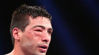 Lucas Matthysse con el ojo inflamado durante la pelea.