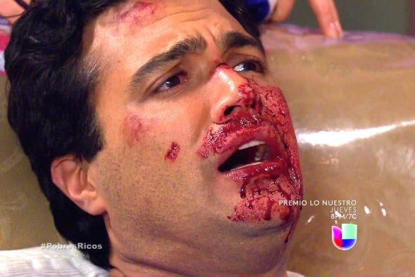 Miguel Ángel quedó con todo su cuerpecito lleno de dolor y...