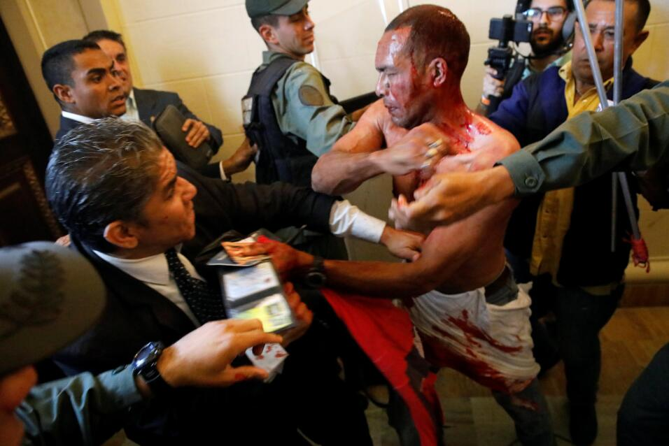 Un partidario del gobierno herido intenta abandonar el edificio de la As...