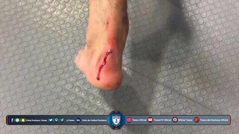 El pie de Hirving Lozano tras el juego ante Puebla.