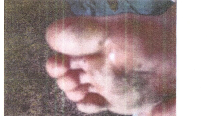 La imagen poco nítida de un pie lastimado.