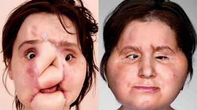 Por más de 30 horas, 11 cirujanos intervinieron en el trasplante de rostro a una joven en EEUU