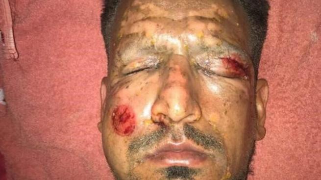 Jurgen Damm habla tras sufrir quemaduras captura-de-pantalla-2018-01-02-...