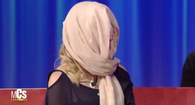 Así mostró su rostro desfigurado con ácido la exfinalista de Miss Italia...