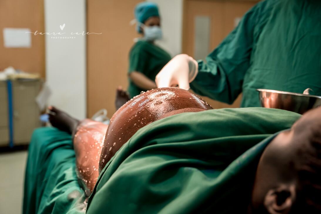 Sangre, dolor, cansancio y ternura: las 20 mejores fotos de partos y pos...