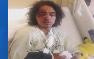 Latino resulta en el hospital tras sufrir un aparatoso accidente a bordo...