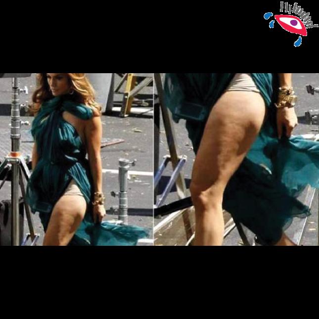 8 momentos en que la celulitis traicionó a Jennifer Lopez. celulitis7.png