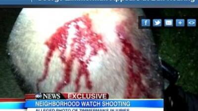 La cadena ABC mostró el jueves una fotografía tomada minutos después de...