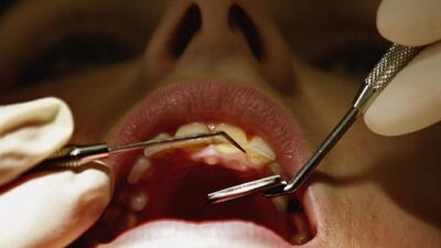 Dientes rotos o astillados, ¿qué se debe hacer para recuperar la salud oral?