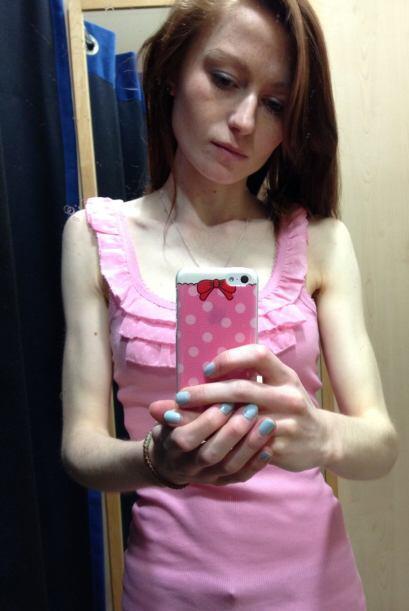 Ella es Nicola de tan sólo 18 años y quien sufrió de anorexia.