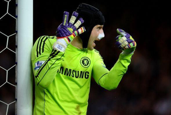 Peter Cech, portero del Chelsea, parece que se hizo la cirugía de nariz...