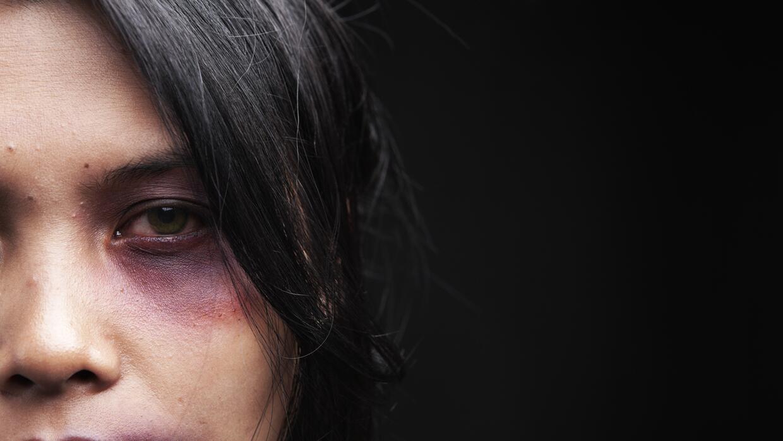 En la mayoría de países donde existen datos sobre violencia contra las m...